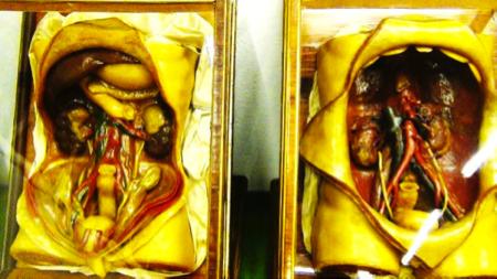 cere anatomiche - Museo La Specola Firenze 5