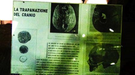 6spec Genova-4-Museo etnomedicina 17